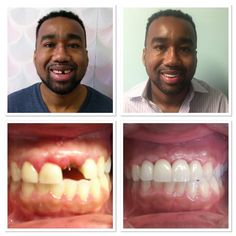 Did you know that.... when your front tooth is  Broken before your wedding. It can stop you from smiling & creating good memories on your big day? But Dr. Velasquez can help.