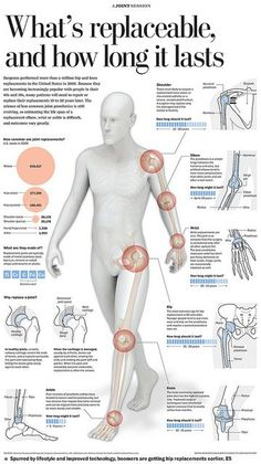 Joints replacement  Repinned by  SOS Inc. Resources  http://pinterest.com/sostherapy.