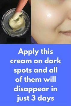 Apply this cream on dark spots and all of them will disappear in just 3 days This is a serum that will give you healthy and glowing skin. It is very effective for dark spots, you can remove all of them in just few days of use Ingredients required Rose water ALoe vera gel Glycerine Vitamin E capsule In a bowl take 1 tbsp aloe vera gel Add 2 tbsp rose … #skincreamfordarkspots