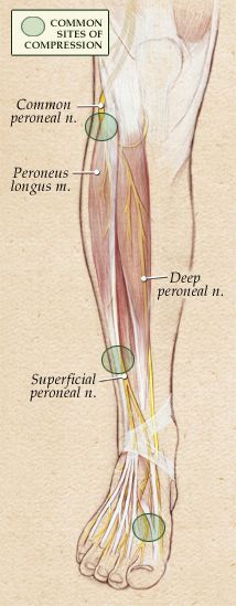 The next most common site of compression is at the top of the foot where a small tendon compresses the deep peroneal nerve against the under...