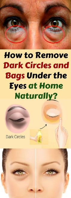 To Remove Dark Circles & Bags Under The Eyes At Home Naturally! How To Remove Dark Circles & Bags Under The Eyes At Home Naturally! How To Remove Dark Circles & Bags Under The Eyes At Home Naturally! Healthy Tips, Healthy Skin, Healthy Beauty, Healthy Protein, Beauty Secrets, Beauty Hacks, Beauty Ideas, Diy Beauty, Dry Eyes Causes
