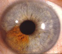 sectoral heterochromia my daughter has this in her left eye