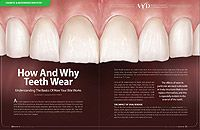Teeth Wear