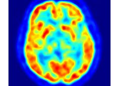 Older Brains Slow Due to Greater Experience, Rather Than Cognitive Decline