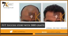 Happy patient of 3000 grafts FUT Hair Transplant result - Hair Transplant Hair Transplant In India, Hair Transplant Results, Hair Transplant Surgery, Fue Hair Transplant, Hair Restoration, Hair Regrowth, Popular Haircuts, Hair Loss Treatment