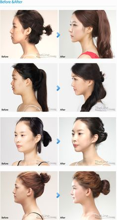 Find a best rhinoplasty surgeon, TheLine clinic provides best nose surgery in Korea, Seoul at affordable cost. Get the Doll like sharp nose with Barbie-nose Rhinoplasty.