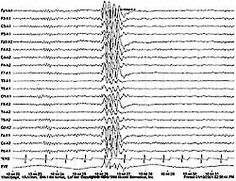 A sample EEG recording showing a focal spike typical of a seizure.