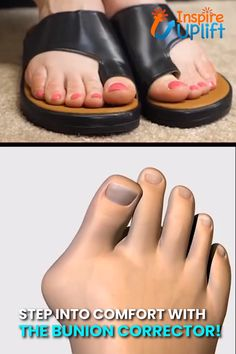 "Best 12 Bunion Corrector Platform Sandals 😍 The Bunion Corrector Platform Sandals are the new go-tos for footwear! They say, ""I'm stylish Toe Ring Designs, Bunion Shoes, How To Store Shoes, Feet Care, Toe Rings, Things To Buy, Vegan Leather, Ciabatta, Inventions"
