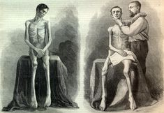 OUR STARVED SOLDIERS.—FROM PHOTOGRAPHS TAKEN AT UNITED STATES GENERAL HOSPITAL, ANNAPOLIS, MARYLAND