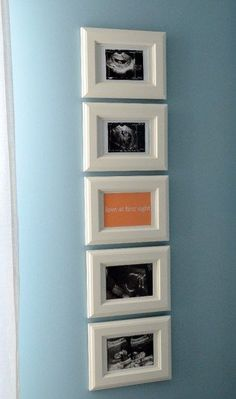 What To Do With Those Sonogram Photos? Psalm 139 in center picture frame. Perfect!