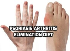 Psoriasis Arthritis Elimination Diet of Bill Moore from Mississippi, USA- http://www.psoriasisselfmanagement.com/life-style-changes/psoriasis-arthritis-elimination-diet-real-life-healing-story/