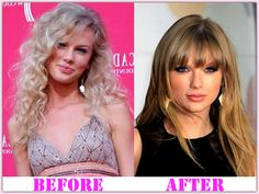 Taylor Swift Plastic Surgery Nose Augmentation Before And After Rhinoplasty