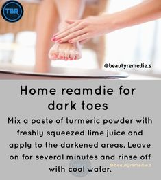 Good Skin Tips, Healthy Skin Tips, Beauty Tips For Glowing Skin, Health And Beauty Tips, Whitening Skin Care, Ayurveda, Diy Beauty Treatments, Skin Care Remedies, Face Skin Care