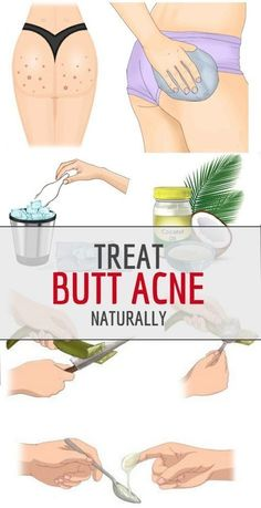 Butt Acne Is One Of Burning Issue For Everyone Just Remove These With No Time In general, acne is defined as plugged pores, pimples, and cysts (which go deeper under the skin than pimples) that occ… Pimples On Buttocks, Pimples On Chin, Pimples Under The Skin, Home Remedies For Acne, Acne Remedies, Health Remedies, What Causes Pimples, Get Rid Of Spots, How To Get Rid Of Pimples