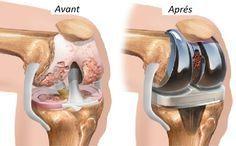Les douleurs aux genoux et aux articulations sont un problème qui touche de nombreuses personnes à travers le monde.