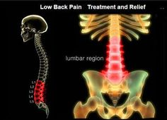 Low Back Pain Treatment Low Back Pain Treatment. Best Natural Treatment for Low Back Pain- Decompression in <21 days.. Ergonomically Correct Lower Back Pain Relief Ergonomic Chairs http://thehealingfrequency.com/low-back-pain-treatment/ http://whymattress.com/how-to-choose-the-best-mattress-for-back-pain/