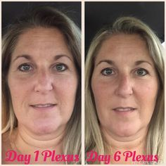 what a difference a week can make - Losing inches and loving Plexus