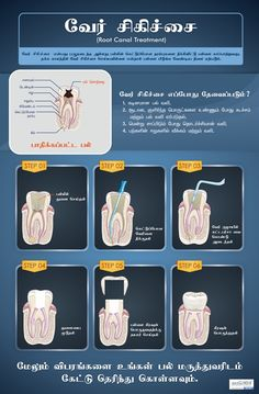 Diligent Tooth Extraction Healing Tips Tooth Extraction Aftercare, Tooth Extraction Healing, Dental Posters, Wallpaper Iphone Love, Homemade Toothpaste, Root Canal Treatment, Dental Art, Wisdom Teeth, Teeth Whitening