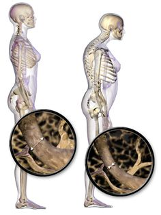 Cinco maneras de prevenir la osteoporosis