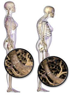Senile postural changes: 1 forward head 2 kyphosis of thoracic spine 3 flattening of lumbar spine