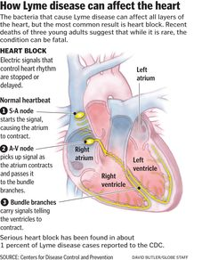 Lyme disease: graphic & explanation on how Lyme disease can affect the heart.  My heart is still affected 12 yrs later.  Block comes & goes. Heart rate is very high.