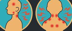Ce syndrome est souvent confondu avec d'autres maladies rares comme la fibromyalgie, le syndrome d'Ehlers-Danlos. Le Pr Claude Hamonet de la Faculté de Médecine de Créteil, Université Paris-Est-créteil, et auteur de nombreuses publications scientifiques sur le syndrome d'Ehlers-Danlos indique quelques signes caractéristiques qui permettent de diagnostiquer le syndrome. Parmi ces symptômes: – Douleurs articulaires et …
