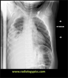 Empyema (loculated pleural effusion): right lateral decubitus radiograph shows a right sided pleural effusion which does not flow freely to the dependent portions of the chest indicating a loculated pleural effusion, or empyema.