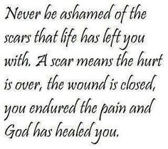 """This quote is so true and truly means a lot to me. With all of the surgeries and open wounds that I have endured since August I have learned without a doubt what a mighty God we serve. I am blessed to have a wonderful husband who sees beyond my scars or my """"Frankenbody"""" as I so lovingly refer to it. Tracey"""