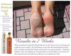 Dry Skin Solution.  Cracked heel solution.  Arbonne.com.  My consultant ID#14418937