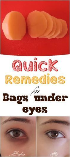 Quick Natural Remedies for bags under your eyes - our Family Health