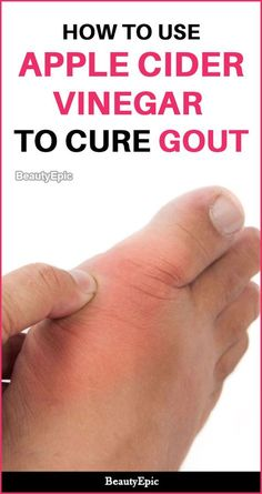 ACV will be able to cure this problem and help you to get rid of the gout pain. Here are few ways to use apple cider vinegar for gout to treat naturally at How To Treat Gout, How To Cure Gout, Home Remedies For Gout, Natural Remedies For Gout, Health Remedies, Remedy For Gout, Herbal Remedies, Natural Gout Treatment, Health And Wellness