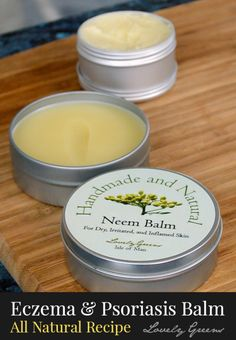 Skincare recipe for making a healing balm for Eczema & Psoriasis - all natural and the oils in the recipe help soothe inflammation, itchiness, and flakiness.