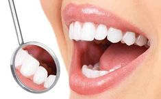 Bad breath and yellow teeth is not only embarrassing it is also bad for your health. Unkempt oral hygiene leads to breeding of bacteria in mouth which can undo your teeth and gums and result in infections. So maintaining good oral hygiene is important. Here are some tips to maintain good oral hygiene. Brushing The … #laserteethwhiteningcosmeticdentistry