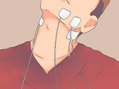 How to Treat TMJ Problems Without Surgery. Your temporomandibular joint (TMJ) connects your lower jawbones to your skull on the side of your head. A TMJ disorder is a condition that causes pain and dysfunction in your jaw, your jaw joint,. Jaw Pain, Neck Pain, Jaw Exercises Tmj, Stretches, Tens Electrode Placement, Tens Unit Placement, Tmj Headache, Neck And Shoulder Muscles, Pain Relief