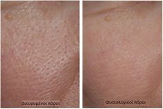 Treating dilated pores: 3 masks to reduce their appearance .- Trattare i pori dilatati: 3 maschere per attenuarne l'aspetto — Vivere più sani Natural masks to prepare at home to reduce enlarged pores - Diy Hair Treatment, Back Acne Treatment, Natural Hair Conditioner, Hair Care Oil, Hair Protein, Salud Natural, Hair Rinse, Sephora, Skin Care