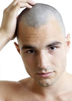 *Why You Should Consider Scalp Micro-Pigmentation* If you're considering options like hair restoration surgery, hair systems or concealers, stop and think for a moment. Do you really want a lifetime of worrying about how your transplant is holding up, or when you'll need your next one? Do you want to rely on temporary cover-ups that you glue or shake on to your head? Scalp micro-pigmentation offers a stylish, modern look without any of the drawbacks of these other options.