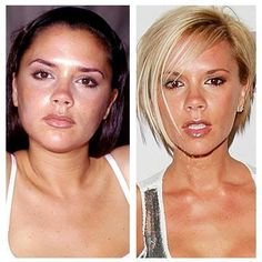 A great real life example of what plastic surgery can do - Plastic Surgery Before and After