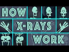 How X-rays see through your skin - Ge Wang | TED-Ed