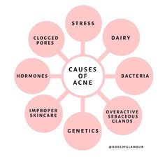 8 CAUSES OF ACNE. Although acne can be genetic, there are many other issues that cause breakouts. Read my complete article to learn the culprits of acne. V Instagram, Body Shop At Home, Acne Causes, Face Skin Care, Tips Belleza, Beauty Quotes, Skin Tips, Beauty Skin, Clean Beauty