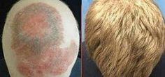 alopecia areata 1 y 4