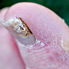 How to Treat Toe Nail Fungus in 6 Steps