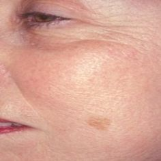 Age Spots Home Remedies See our age-spot photo collection.