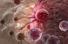 Estudo revela como células de tumores se ocultam nos ossos de pacientes  Cientistas dos EUA descobrem como células do tumor se ocultam dentro dos ossos dos pacientes para, depois do tratamento, espalharem a doença. A pesquisa abre caminho para tratamentos mais eficazes contra o carcinoma