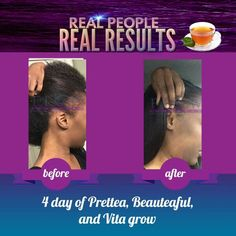 Rapid #hair growth, Amazing! #thinning #regrowth