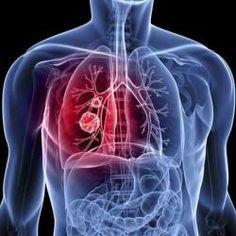 Las muertes por cáncer de pulmón aumentan un 76% en mujeres