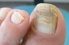 3 remedios caseros para eliminar los hongos en las uñas de los pies.