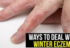 Ways to Deal with Winter Eczema