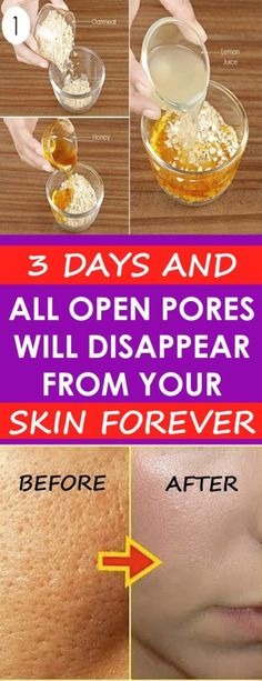 Natural Skin Remedies 3 Days and All Open Pores Will Disappear from Your Skin Forever! Herbal Remedies, Home Remedies, Natural Remedies, Apple Cider Vinegar For Skin, Apple Cider Face, Piel Natural, Skin Toner, Tips Belleza, Belleza Natural