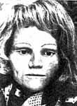 """Unidentified White Female - The victim was discovered on April 19, 1981 in New Lenox, Will County, IL  Est Date of Death: 2-12 months prior to discovery. Partial Skeletal Remains   The Doe Network: Case File 592UFIL  Est age: 23-35 years old  Approx Height and Weight: 5'5""""-5'7""""; 100-115 lbs.  Characteristics: Blonde hair. Only a few strands of long hair were located - light brown to blonde. Exam indicates that the right nasal bone had been fractured and healed.  DNA: mtDNA available at UNT."""
