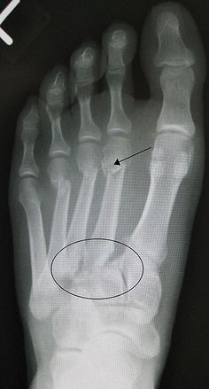 """""""The Lisfranc injury (also known as the Lisfranc fracture, Lisfranc dislocation, Lisfranc fracture dislocation, tarsometatarsal injury, or simply midfoot injury) is an injury of the foot in which one or more of the metatarsal bones are displaced from the tarsus. This type of injury is named after Jacques Lisfranc de St. Martin (2 April 1790–13 May 1847), a French surgeon and gynecologist who first described the injury in 1815, after the War of the Sixth Coalition."""""""
